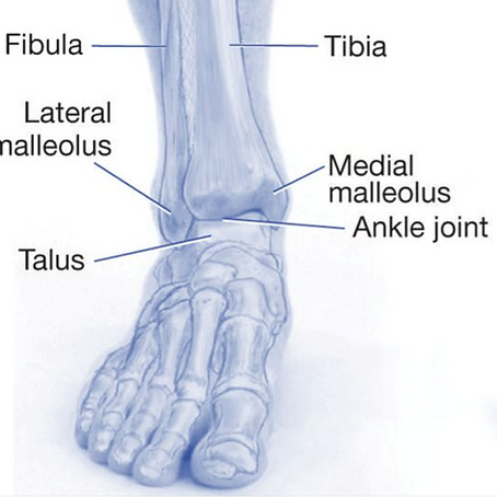 Lateral Ankle Ligament Injuries