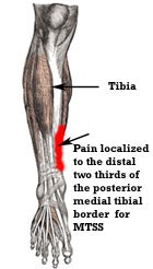Medial Tibial Stress Syndrome (MTSS)
