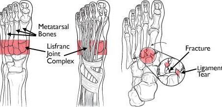 Lisfranc Foot Injury