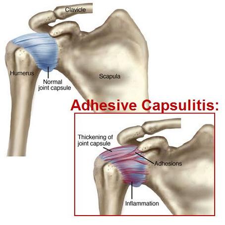 Frozen shoulder AKA Adhesive Capsulitis