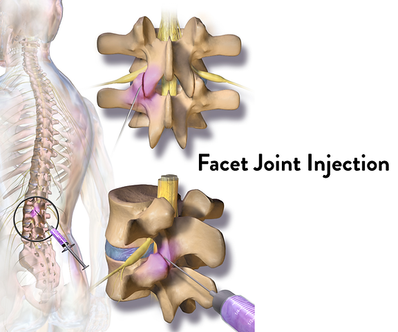 img-Facet-Joint-Injection.png
