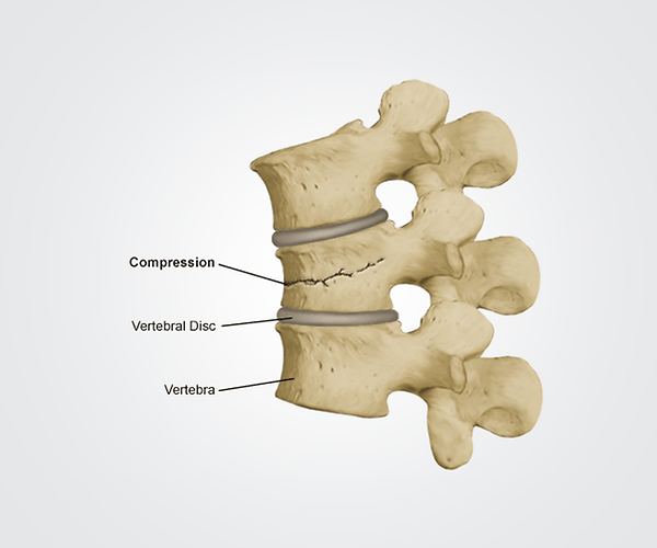 img-compression-fracture.png