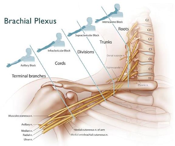 img-Brachial-Plexus-Block.png
