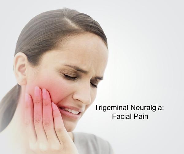 img-Trigeminal-Neuralgia.png