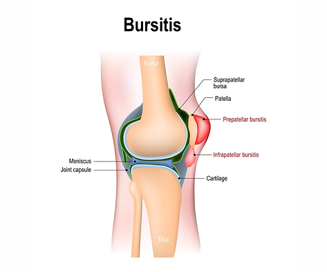 img-Bursitis.png