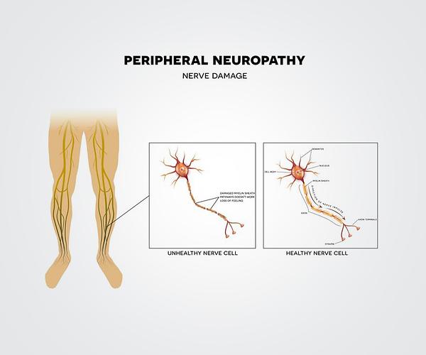 img-peripheral-neuropathy.png