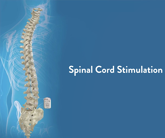 img-Spinal-Cord-Stimulation.png