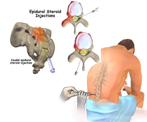 img-caudal-steroid-injection.png