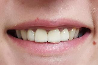"""שיפור חיוך משמעותי ע""""י זירקוניה"""