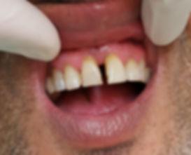 סגירת רווח בין שיניים