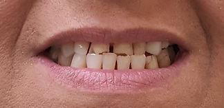 שינוי חיוך - בניית שיניים עם קומפוזיט