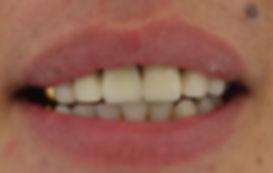 """החלפת חיוך """"אופנתי"""" לחיוך אסטתי ומודרני"""