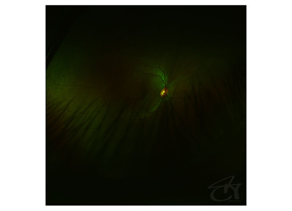 eyerise