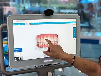 Así se verán tus dientes en nuestro iTer