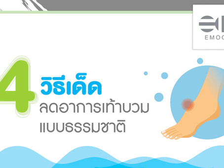 4 วิธีเด็ดลดอาการเท้าบวม