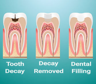 dental-filling.jpg