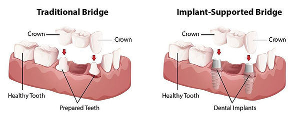 traditionalbridge-vs-implant.jpg