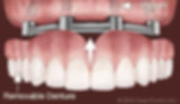 implants-support-removable-dentures.jpg