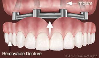 implants-support-removable-dentures.jpg