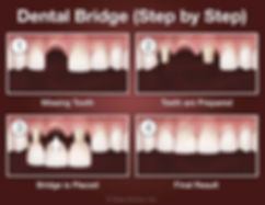 bridge-step-by-step.jpg