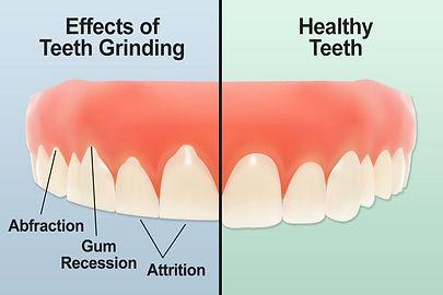 Teeth_Grinding.jpg