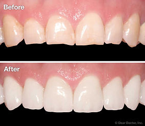 veneers-before-after.jpg