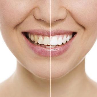 Teeth-Whitening-half-white-smile-500px.j