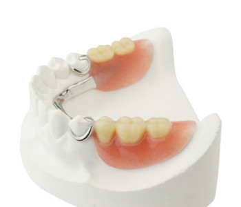 Dentist In Destin, Niceville, Fort Walton Beach Area Describes Affordable Partial Dentures
