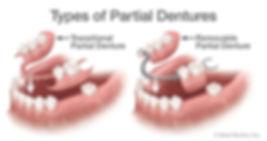 types-of-partial-dentures.jpg
