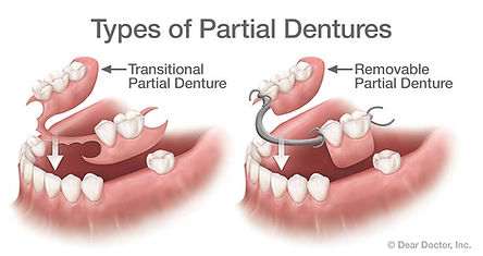 types-of-partial-dentures.jpg
