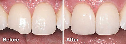 tooth-bonding-before-after.jpg