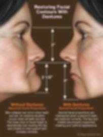 denture-faces.jpg