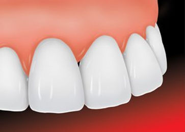 ada_dental_veneer_2_new.jpg