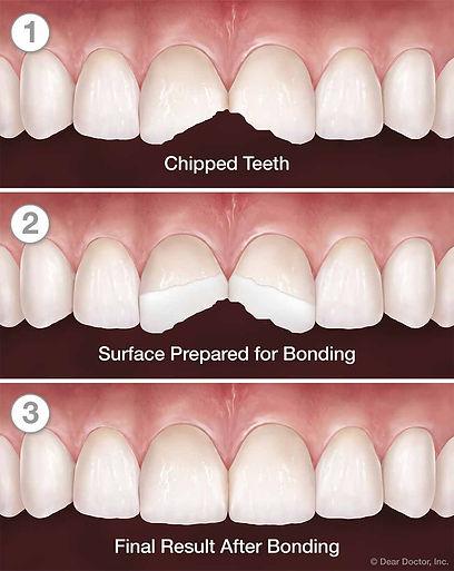 tooth-bonding-series.jpg