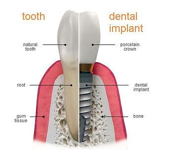 ImplantNugent.jpg