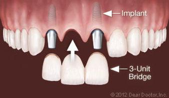 implants-replace-multiple-teeth-1.jpg
