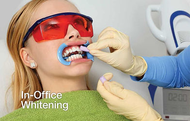 in-office-whitening.jpg
