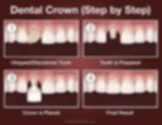 crown-step-by-step.jpg