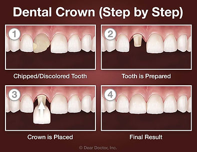 crown-step-by-step.jpg
