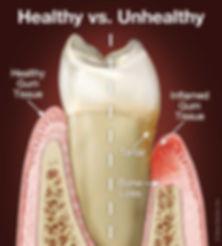 periodontal-disease.jpg