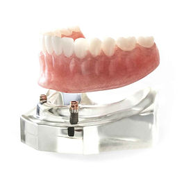Implant Supported Dentures.jpg