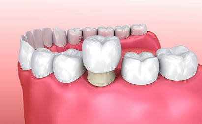Dental-Crowns-TAS.jpg