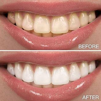 before-after-teeth-whitening.jpg