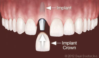 implants-replace-one-tooth.jpg