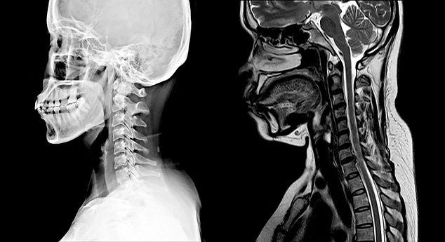 esclerosis1.jpg