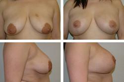 Mastoplexy and Implant