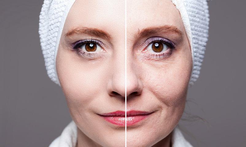 after shots - skin care, anti-aging procedures, rejuvenation, lifting, tightening of facial skin
