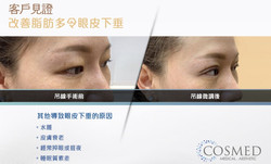 Cosmed 吊線雙眼皮手術