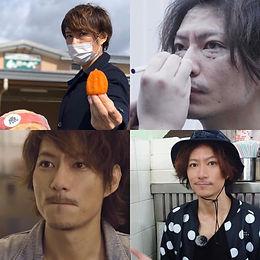 Eyebags Removal Surgery Japanese Celebri