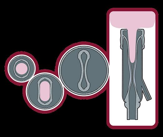 Evolution XLO Diagram